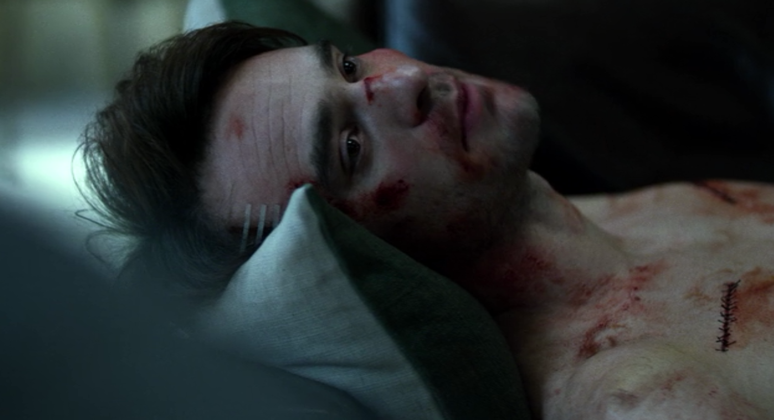 Those stitches aren't for show, Murdock took some serious hits